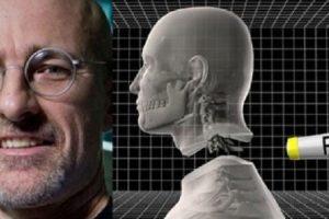 نجاح عملية زراعة اول رأس بشري علي يد متخصيين بريطانين