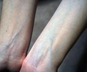 لماذا تبدو عروقنا زرقاء تحت بشرتنا مع ان مايجري داخلها هو دم احمر اللون؟؟